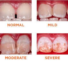 dental flourosis